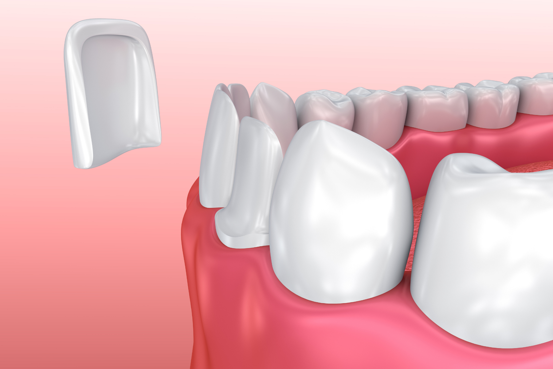 dental veneer rendering